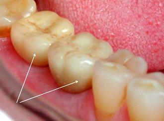 фиксация безметалловых коронок на имплантаты