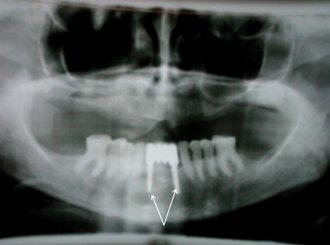 установка зубного мостовидного протеза