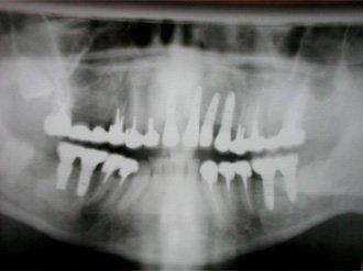 панорамный рентгенснимок челюстей