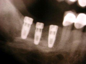 стоматология в Киеве, Украине